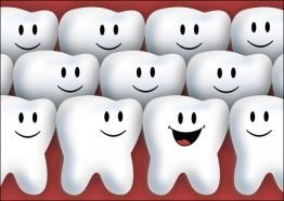 Gruppe von Zähnen
